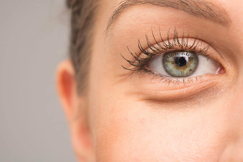 Why Do Your Under Eyes Get Dark?