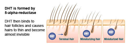DHT Hair Loss