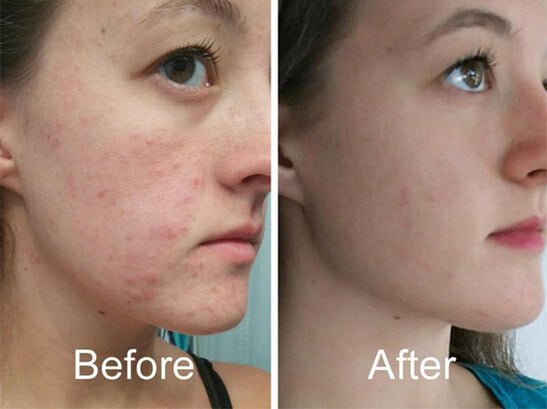 Acne-Result