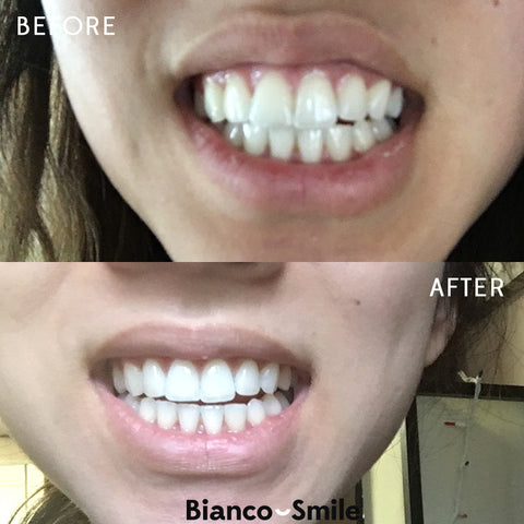 Teeth Whitening Kit Bianco Smile