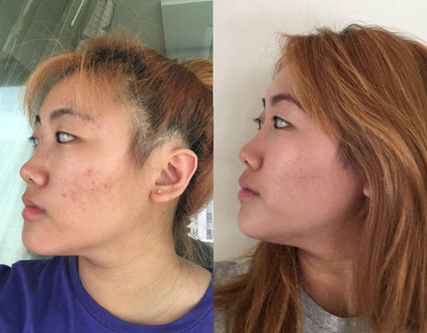 TULA acne clearing gel the results