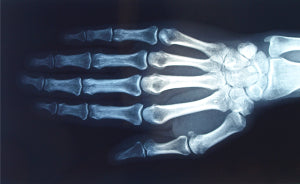 Each hand has 19 bones, as well as joints, ligaments, cartilage and tendons.