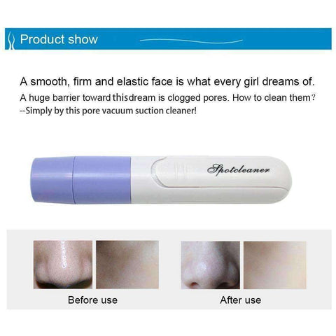 Mini Handheld Facial Pore Blackhead Vacuum Suction Blackhead Remover - AMAZOFFER