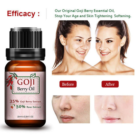Super Anti Wrinkle Anti Aging Acid Goji Berry Essential Oil Rose Flavor Chinese Wolf Berry Anti-wrinkle Cream - AMAZOFFER