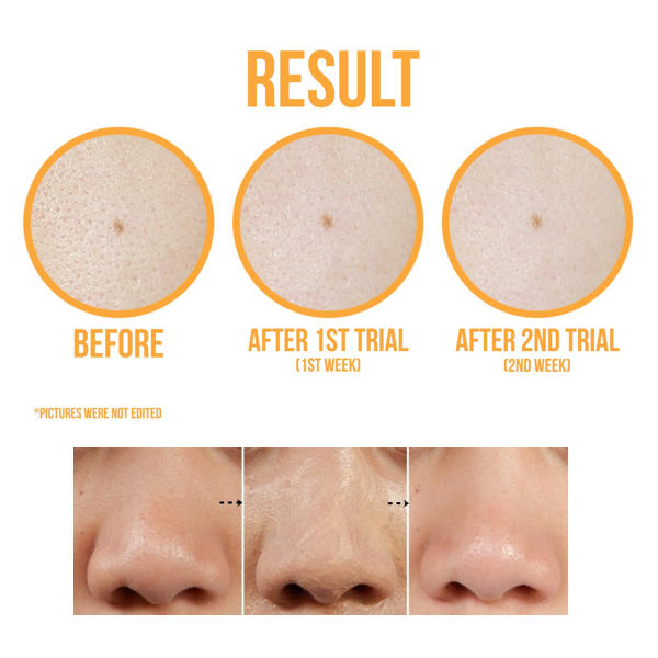 TONYMOLY™ Egg Pore Tightening Cooling Pack - LilyVanity