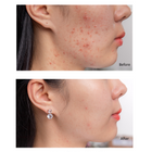 SOMEBYMI™ AHA BHA PHA 14Days Super Miracle Spot - LilyVanity