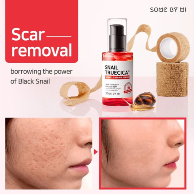 SOMEBYMI™ Snail Truecica Miracle Repair Starter Kit - LilyVanity