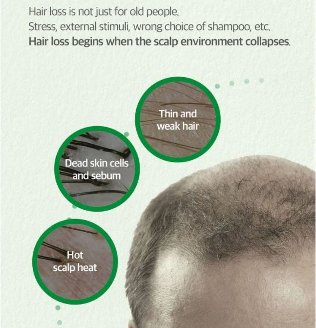 SOMEBYMI™ Cica Peptide Anti-Hair Loss Derma Scalp Tonic