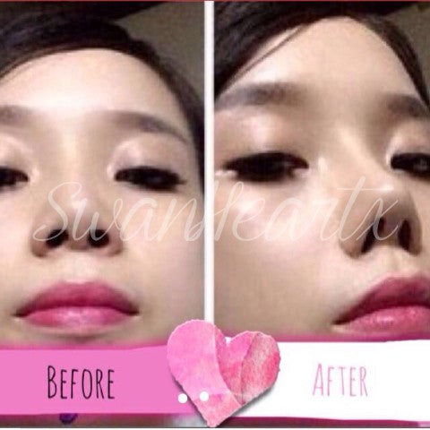 Instant Nose Job Nose Inserts