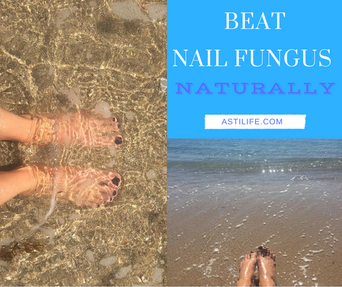 Restore - Best Natural Nail Fungus and Foot Fungus Remedy