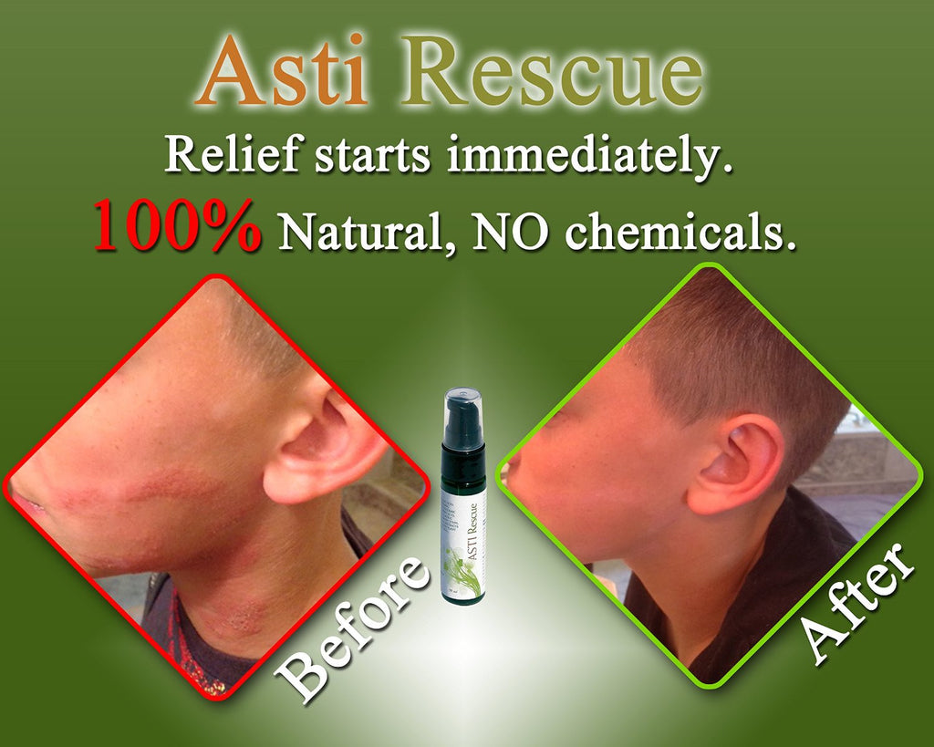 Rescue - Best Natural Remedy for Rashes