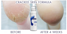 Footlogix Cracked Heel Mousse Formula 125ml