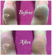 Foot Peel for home!! Amazing results! - Exquisite Laser Clinic