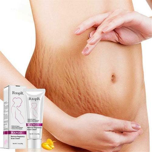 Pregnancy Stretch Marks Treatment