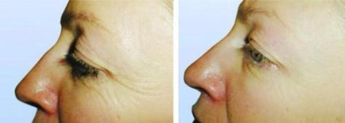 TE360 Anti-Aging System (Pro Only)