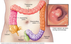 How to Maintain and Keep your Colon Healthy