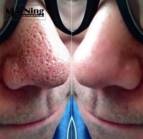 Nose Strips Deep Cleaning Acne Removal