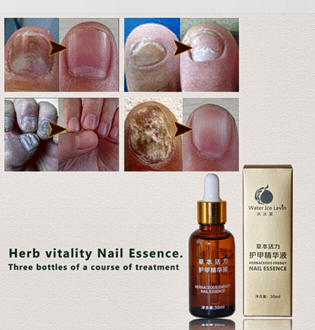 Anti-Fungal Nail Treatment with  Foot Whitening Essence - MyShimi.com