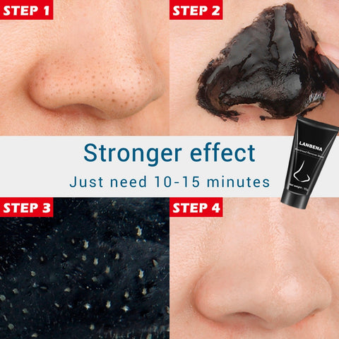 Blackhead Acne Treatment  Skin Care Peel-off  Mask - MyShimi.com