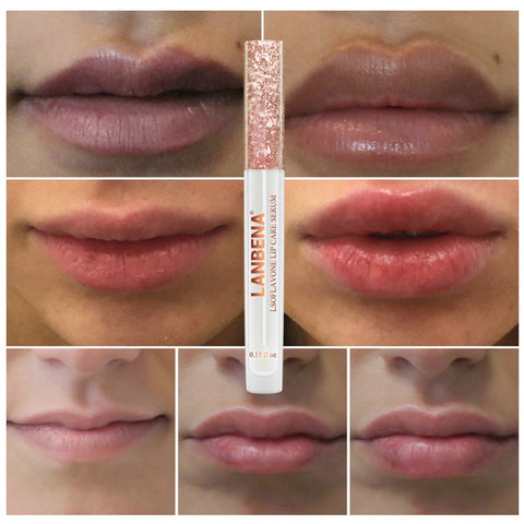 Moisturizing  and Hydrating Lip Plumper Beauty Tool - MyShimi.com