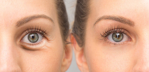 visible difference in the before and after eye care use