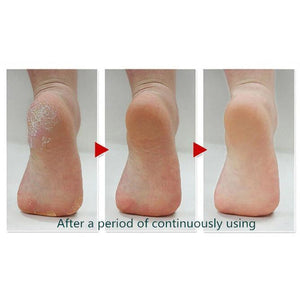 Perfect Pedi Callus Remover - GenieMania