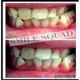 Smile Squad Advanced LED Whitening Kit