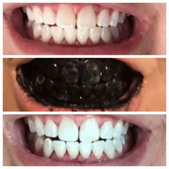 Panda Paste - Teeth Whitening Toothpaste with Activated Charcoal & Turmeric