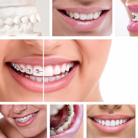 Long-term Fixed Braces Treatment (Per arch)