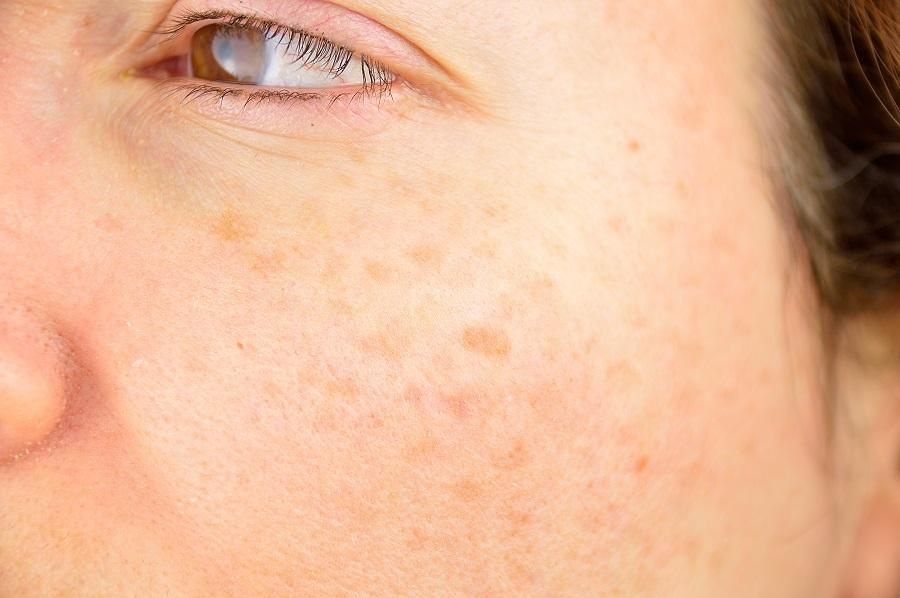 Age Spots Causes, Prevention + Ayurvedic Remedies For Age Spots