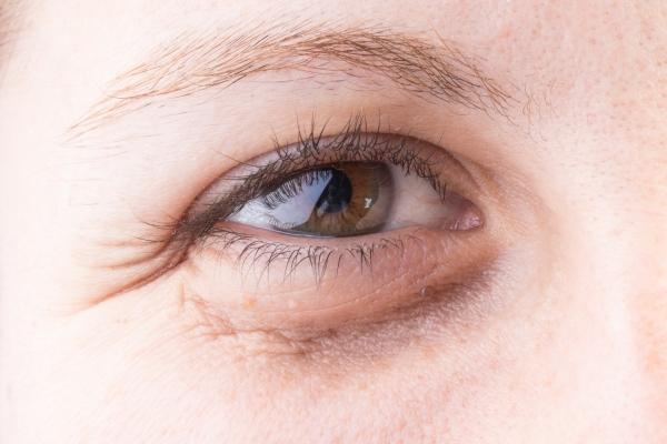 Eliminate Puffy Eyes Naturally With Ayurvedic Wellness
