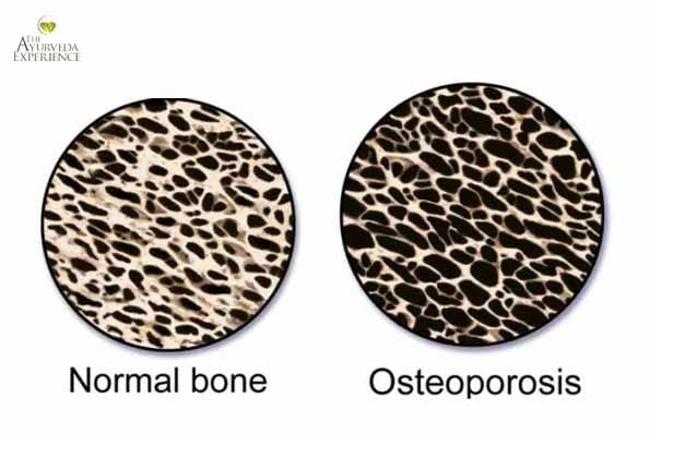 Osteoporosis Treatment, Prevention + Ayurvedic Remedies, Therapies