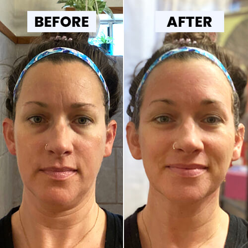 Before and After Heather used Chandaluna Ayurvedic Facial Mask