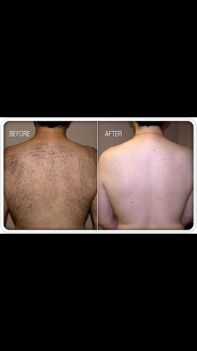 6  Laser hair removal sessions on back or chest