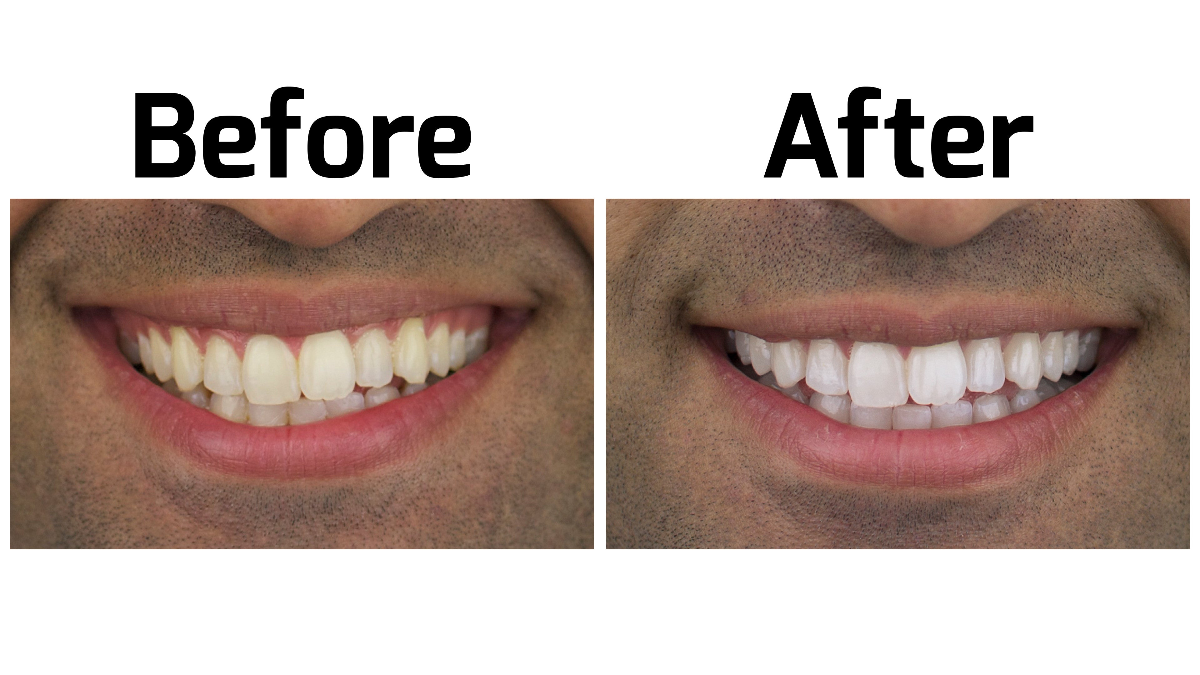 Before And After Photos Rejuvenate By Dr Brite