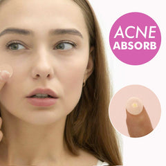 Invisible Acne Absorbing Patches - Instantly Fix Pimples and Blemishes