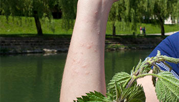 Anti-inflammatory Itch Relief
