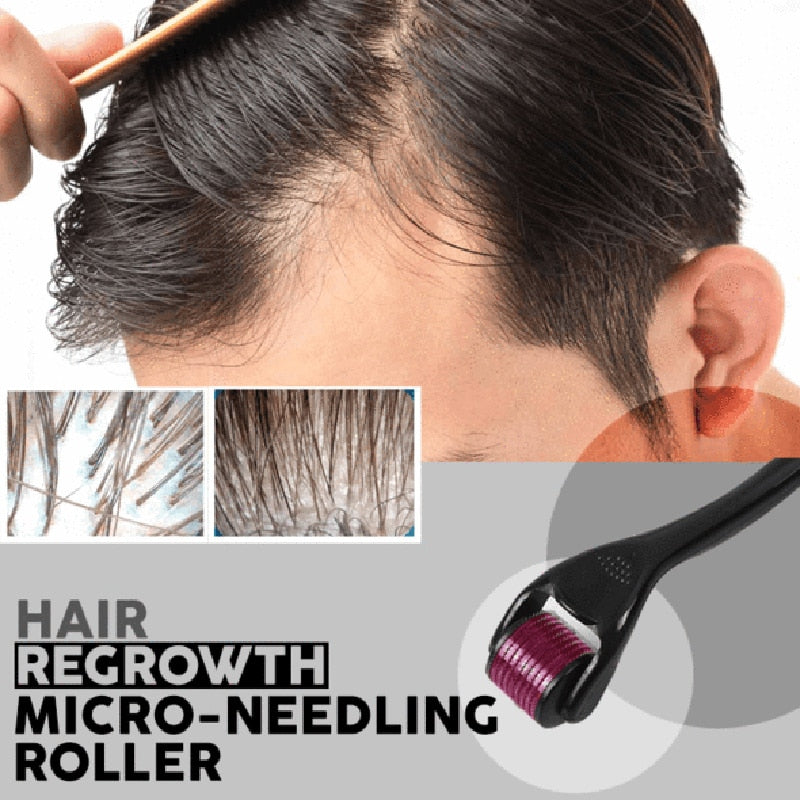 Titanium Micro Needle Roller Hair Regrowth   FREE SHIPPING