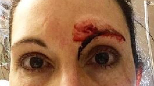 US jogger Kelly Herron has explained how she fought her way out of a bathroom attack