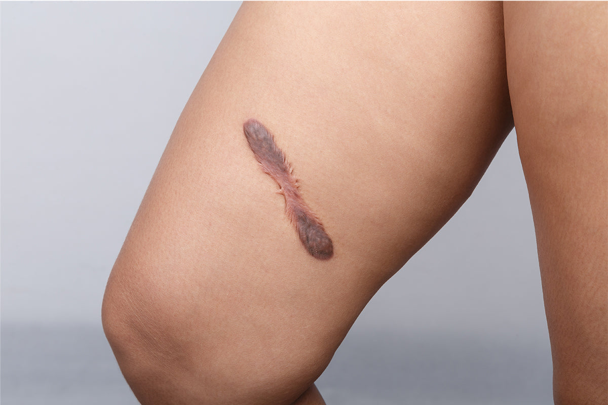 What to Do If Your Scar Becomes Raised and Discolored