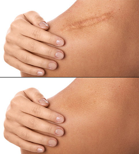 Scars Don't Have to Be Permanent: Try These 6 Tips to Heal Your Scar