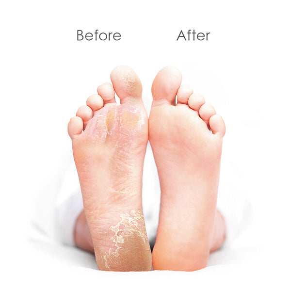Baby Foot Peel Large