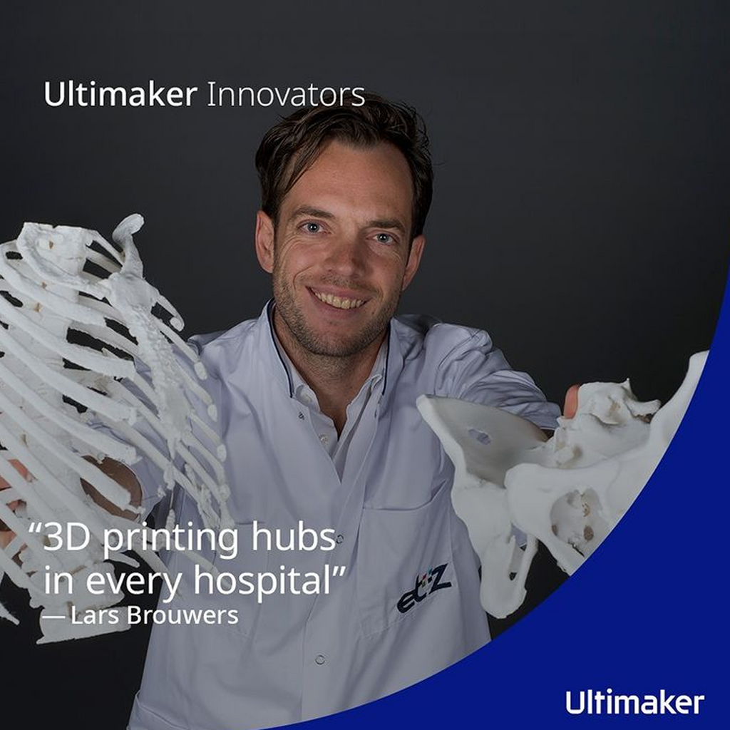 Ultimaker Innovators: Dr Lars Brouwers uses 3D printing to help and to heal