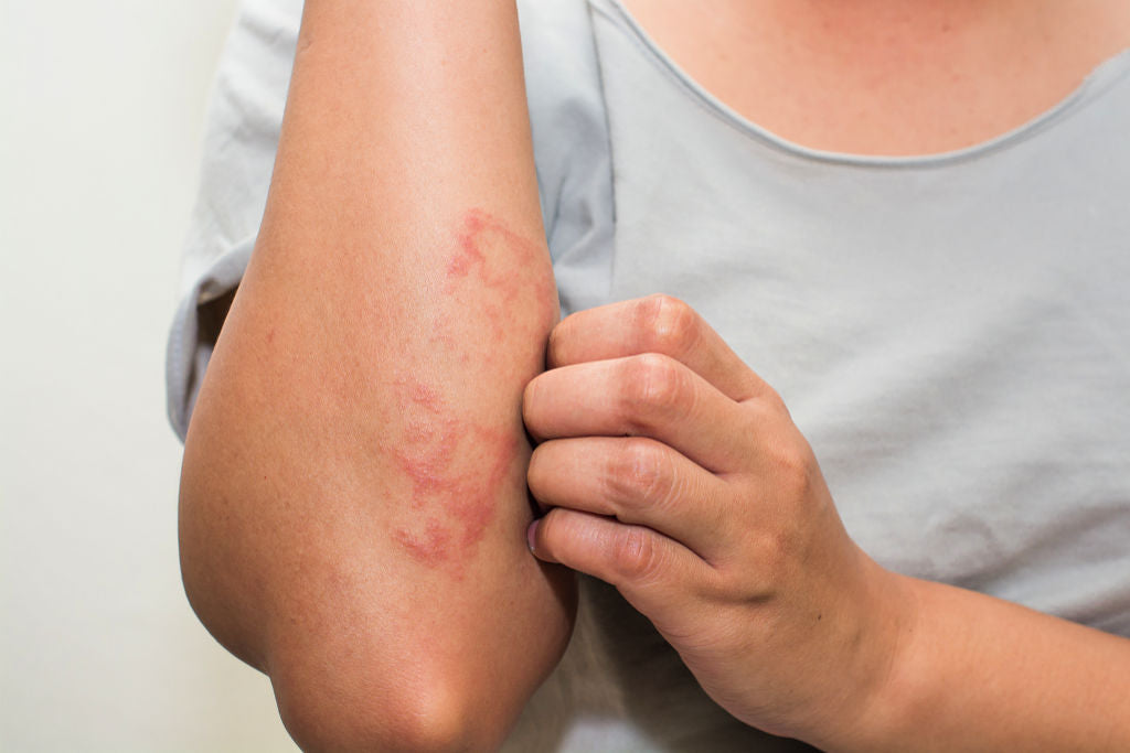 The Best All-Natural Eczema & Psoriasis Treatment | LAVIOR