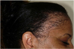Traction Alopecia scalp