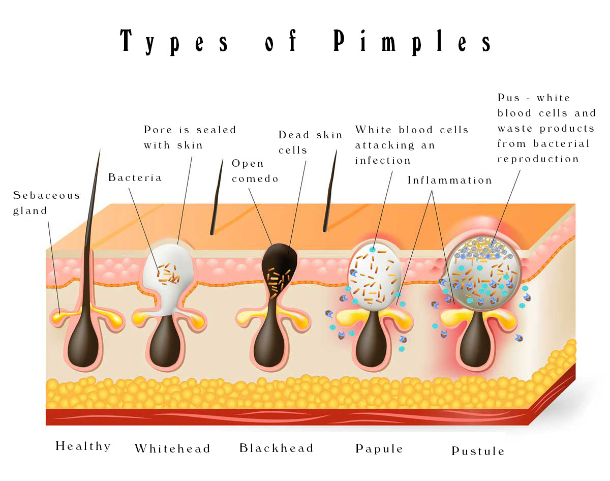 types of acne pimples graphic moon + rock