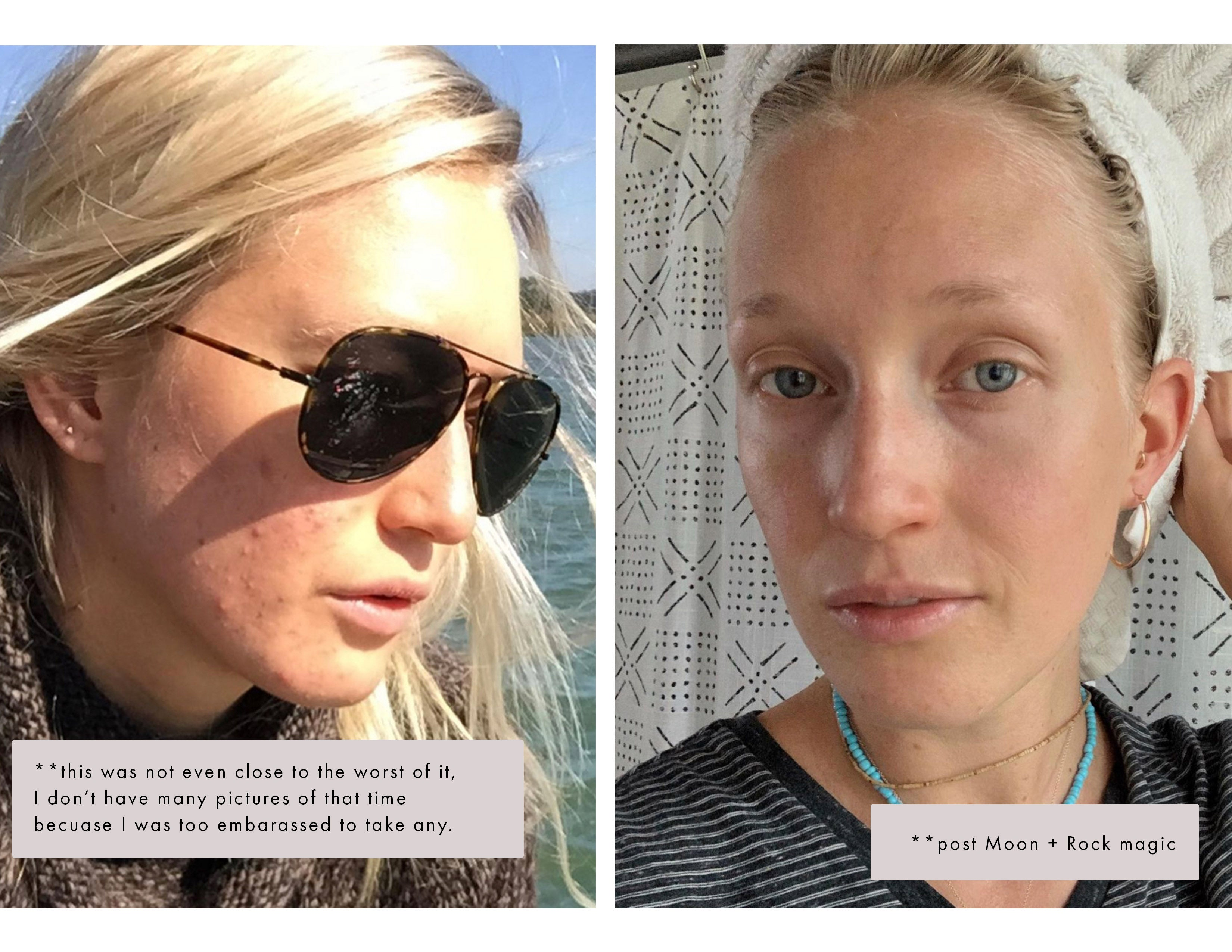 moon + rock acne testimonial before and after healing organic skincare