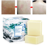 Acne Treating Soap