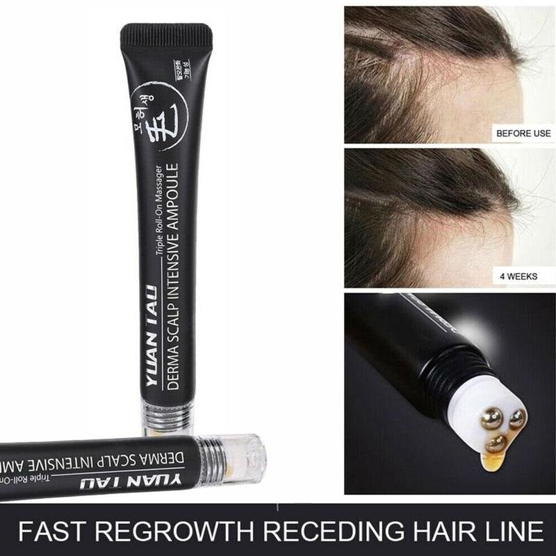 Scalp Intense Roll-on Hair Growth Serum
