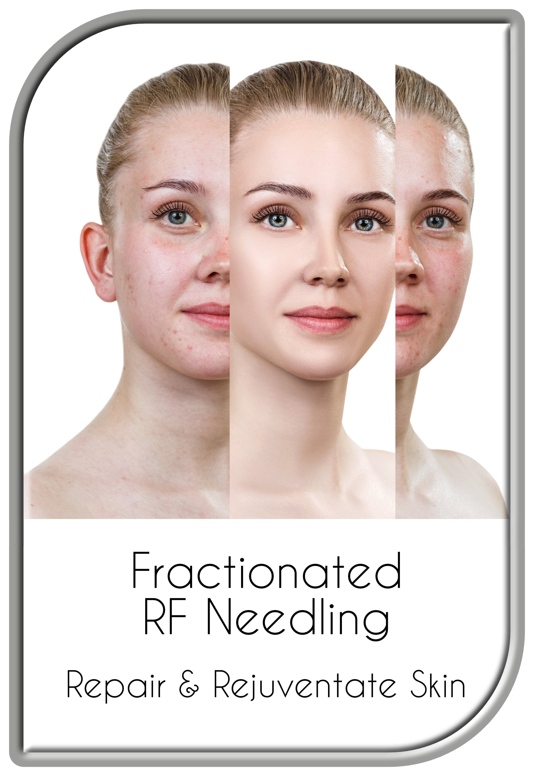 Fractionated RF Needling